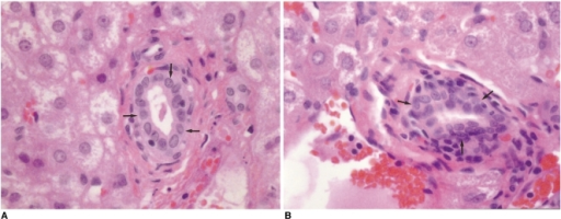 Microphotographs (H & E, ×400) of resected specimens obtained immediately after radiofrequency ablation. The microphotograph of the liver specimen ablated with the Pringle maneuver (B) shows mild proliferation of bile duct epithelium (arrows), whereas it is normal (arrows) in the liver ablated without the Pringle maneuver (A).