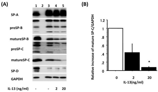 IL-13 alters mature SP-C protein level in a dose-dependent manner. Adult human ATII cells were cultured on Matrigel and rat-tail collagen coated inserts in DMEM containing 5% heat inactivated human serum with 2 d of TGFα followed by 4 d of KGF. Panel A shows a representative immunoblot from ATII cells cultured with 2 or 20 ng/ml IL-13 for the final 4 days. Lane 1: day 0 control (freshly isolated ATII cells), Lane 2: empty lane, Lane 3: 2 d 10 ng/ml TGFα + 4 d 10 ng/ml KGF, Lane 4: 2 d 10 ng/ml TGFα + 4 d 10 ng/ml KGF with 4 d 2 ng/ml IL-13, Lane 5: 2 d 10 ng/ml TGFα + 4 d 10 ng/ml KGF with 4 d 20 ng/ml IL-13. Panel B shows the reduction in mature SP-C protein levels after treatment with IL-13 (black) by immunoblotting data normalized to GAPDH (n = 3), which are analyzed by NIH Image. The comparison is to cultures without IL-13. Representative data are shown in Panel A lane 3 to 5. *: p < 0.05 v.s without IL-13.