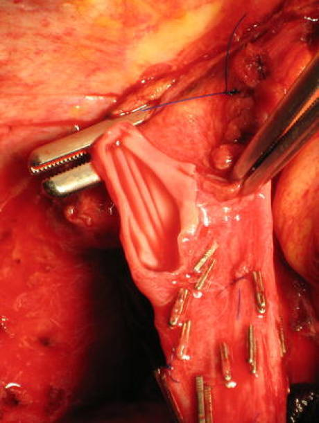 Posterior cavoplasty by oval excision of the posterior sector of the orifice of the RHV. The anterior rim of the orifice of the MHV is left and also used for the anastomosis to avoid tension