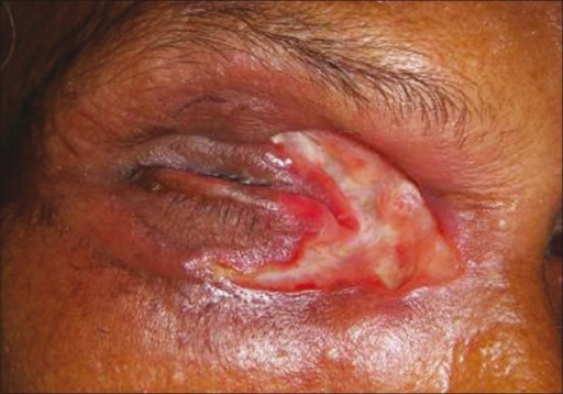 Healing of lids after treatment with ivermectin