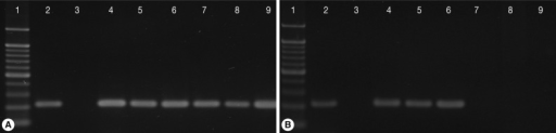 Single-tube nested PCR amplification (208-bp) of Tritrichomonas foetus with primers TFR3/TFR4 and primers TFITS-F/TFITS-R in cats from Korea on day 0 (A) and day 28 after the initiation of treatment with ronidazole at 50 mg/kg twice a day for 14 days (B). Lane 1, molecular weight marker; 2, positive control; 3, culture medium; 4, 5, 6, untreated control cats (C-16, C-70, C-71); 7, 8, 9, cats treated with ronidazole (C-30, C-45, C-77).