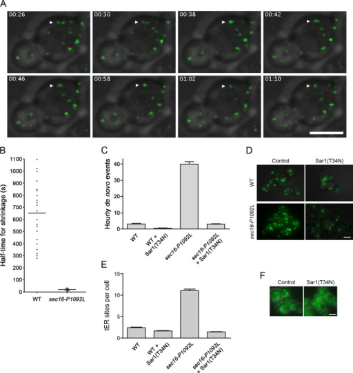 Altered dynamics of tER sites in sec16‑P1092L mutant cells. (A) Shrinkage of tER sites after fusion events in sec16‑P1092L cells. A sec16‑P1092L strain expressing Sec13‑GFP was grown at room temperature, then warmed to 36.5°C for ∼45 min before imaging by 4D microscopy at 36.5°C. Shown are merged fluorescence and differential interference contrast (DIC) images of representative cells. The arrowhead marks a pair of tER sites that underwent fusion followed by shrinkage. Frames are taken from Supplemental Movie S2, and the time from the beginning of the movie is shown in minutes:seconds format. Scale bar, 5 μm. (B) Quantitation of tER site shrinkage in wild-type and sec16‑P1092L cells. From 4D movies of the type shown in A, ∼20 newly fused tER sites were chosen at random for WT or sec16‑P1092L cells. The half-times for shrinkage were determined from plots of the type shown in Supplemental Figure S4A. Each dot represents an individual fused tER site, and the horizontal lines represent the average half-times. (C) Quantitation of de novo tER site formation in wild-type and sec16‑P1092L cells. The cells expressed Sec13-GFP, and, where indicated, they also expressed Sar1(T34N) from the inducible AOX1 promoter. Cultures were shifted to inducing methanol medium for 3 h at room temperature, grown at 36.5°C for an additional 50 min, and then imaged by 4D microscopy at 36.5°C for either 40 min for wild-type cells or 10 min for sec16‑P1092L cells. For each culture, the number of de novo tER site formation events was recorded for ∼20 cells. Plotted are the hourly mean and SEM values. (D) Prevention of tER dispersal by expression of Sar1(T34N). Wild-type or sec16‑P1092L cells expressing Sec13-GFP were transformed with a control vector or a vector encoding Sar1(T34N) expressed from an inducible promoter. Cultures were shifted to inducing methanol medium for 2.5 h at room temperature and then grown at 36.5°C for an additional 1 h before imaging. Shown are merged fluorescence and DIC images of representative cells. Scale bar, 5 μm. (E) Quantitation of the results from D. For each of the four conditions, the tER sites were counted in ∼50 cells. Plotted are mean and SEM. (F) Cytosolic localization of Sec16-P1092L in the presence of Sar1(T34N). In a sec16-P1092L strain, the mutant sec16 gene was tagged with GFP by gene replacement. The resulting strain was transformed with a control vector or a vector encoding Sar1(T34N) expressed from an inducible promoter. Induction and imaging were performed as in D. The expression of Sar1(T34N) was confirmed by measuring growth inhibition (Connerly et al., 2005; unpublished data). Scale bar, 5 μm.
