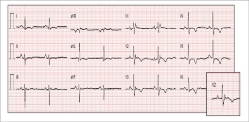 Resting 12-lead ECG showing T-wave inversion from V2 to V6 (major diagnosticcriteria) and epsilon waves in V1–V3 (major diagnostic criteria).