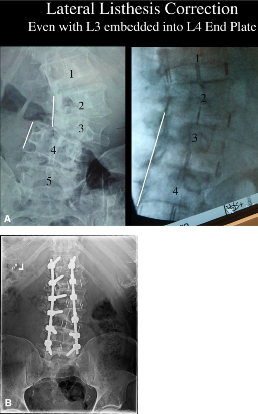 grading listhesis Grade 3 spondylolisthesis is a 51 to 75 percent slide, however surgery may be an option if conservative therapies do not relieve your discomfort.