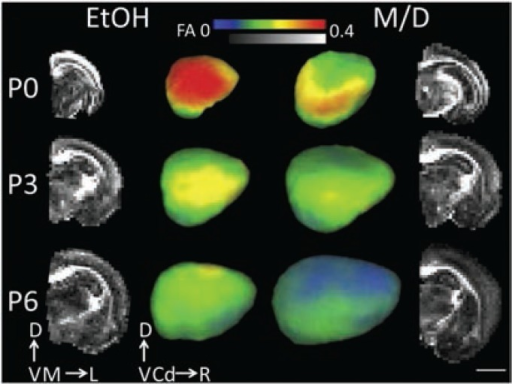Effect of prenatal ethanol exposure on cerebral cortical fractional anisotropy. The two middle columns of images are laterally facing mid-cortical surface models of one rat at PD 0, PD 3, and PD 6 right hemisphere for each treatment group (ethanol) and maltose/dextrin (M/D), on which cortical fractional anisotropy (FA) at each mid-cortical surface node is projected. The outer columns represent mid-coronal FA maps for the right hemisphere of the same subjects depicted in the middle columns. Cortical FA decreased significantly with age. Additionally, cortical FA was largest, and isocortical volume smallest, in the ethanol group compared with the M/D group. This group difference is most visible in the outer layers of the cortex.NOTE: Scale bar is 4 mm. D = dorsal, V = ventral, M = medial, L = lateral, Cd = caudal, R = rostral. Figure adapted from Leigland et al. 2013b.