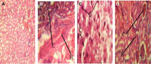 Pathogenic effects of Enterococcus faecalis strains on experimental animals (magnification 400×). (A) Liver tissue of albino rat (control group) showing normal tissue appearance. (B) Liver tissue of albino rat, fed with EFC 12 (having four virulence genes gel+, esp+, cylA+, and asa1+) showing pronounced renal corpuscles and areas of inflammatory changes (arrow). (C) Liver tissue of albino rat fed with EFT 148 (having three virulence genes gel+, ace+, and asa1+) showing necrosis of hepatic cells with pyknotic nuclei, disorganization of hepatic laminae, and dilation of sinusoids (arrow). (D) Liver tissue of albino rats, fed strain of E. faecalis strain EFS 18 (having two virulence genes, ie, gel−, esp+, and cylA+) showing well preserved renal corpuscles and less pronounced areas of inflammatory changes (arrow).