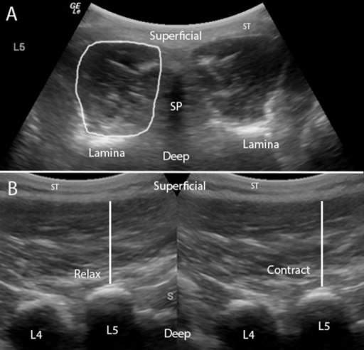 (A) Transverse image of the multifidus muscle and cross-sectional area measurement at L5. SP, L5 spinous process; ST, subcutaneous tissue. (B) Parasagittal image of the multifidus muscle and thickness measurements of the muscle at rest and on contraction. S, sacrum (used to indicate direction of image); ST, subcutaneous tissue.
