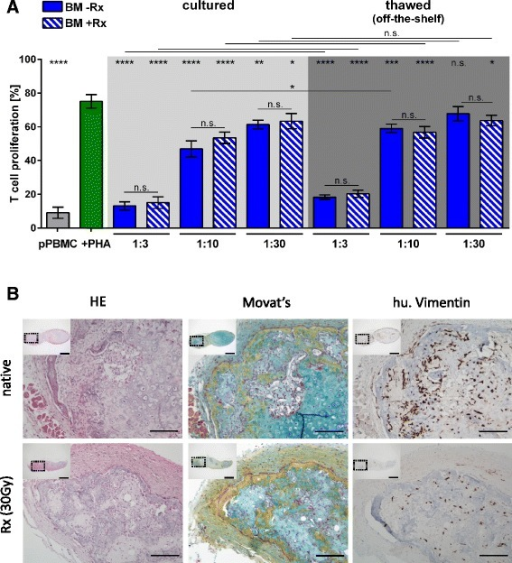 Irradiated MSPC maintain their immunomodulatory potency in vitro and their differentiation capacity in vivo. a Direct comparison of the inhibition of phytohemagglutinin (PHA)-induced T-cell proliferation (green bar) by non-irradiated bone marrow (BM)-MSPCs (-Rx; blue bars) versus 30 Gy irradiated BM-MSPCs (+Rx; hatched blue bars) immediately after thawing (off-the-shelf use; dark grey area) or after a 3-day rescue culture (light grey area) showed no significant difference at the three ratios as indicated (*p < 0.05; **p < 0.01; ***p < 0.001; ****p < 0.0001). Grey bar shows mean ± SD of unstimulated pooled T-cell proliferation. One representative experiment out of two is shown. b Representative histologic analysis of ectopic ossicles derived from native (non-irradiated, upper pictures) and irradiated (Rx; 30 Gy, lower pictures) BM-MSPC (n = 6 per group) 6 weeks after subcutaneous transplantation into immunocompromized NSG recipient mice. Bone formation via a vascularized cartilage intermediate was evident in hematoylin and eosin (HE; left panels) as well as Movat's pentachrome (Movat; middle panels) staining. Vimentin staining (right panels) indicating persistence of reticular stromal cells (MSPCs) within the ectopic ossicles which showed infiltration by (human (hu.) Vimentin-negative) murine hematopoiesis as described previously only for native (non-irradiated) BM-MSPCs [27]. Scale bars are 100 μm in main histophotographs and 1 mm in inserts (showing overview of a section through the entire ossicle; dotted rectangles indicate the regions from where the magnified main pictures were derived). n.s. Not significant, pPBMC Pooled peripheral mononuclear cell