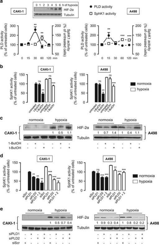 PLD regulates SphK1-dependent HIF-2α expression in CAKI-1 and A498 ccRCC cells. (a), CAKI-1 (left) and A498 (right) cells were incubated under hypoxia for the indicated times and then tested for PLD and SphK1 enzymatic activities. Points, mean of at least three experiments; bars, s.e.m. **P<0.01; ***P<0.001. Inset, HIF-2α expression in CAKI-1 cells exposed to hypoxia for the indicated times. Similar results were obtained in at least three independent experiments, and equal loading was monitored using antibody to α-tubulin. (b, c), CAKI-1 (left) and A498 (right) cells were untreated or treated with 1-butanol (1-ButOH) or tert-butanol (t-ButOH) as control (0.8%). SphK1 activity (b) and HIF-2α expression (c) were determined in normoxia or after 1 h and 6 h of hypoxia, respectively. Similar results were obtained in at least three independent experiments, and equal loading was monitored using antibody to tubulin. Columns, mean of three independent experiments; bars, s.e.m. The two-tailed P-values between the means of normoxic or hypoxic cells are ns, not significant; **P<0.01; ***P<0.001. (d, e) CAKI-1 (left) and A498 (right) cells were transfected with siPLD1 (50 nmol/L), siPLD2 (50 nmol/L) or siPLD1 (50 nmol/L) and siPLD2 (50 nmol/L) or siScr (50 nmol/L) for 72 h then incubated under normoxia or hypoxia. SphK1 activity (d) and HIF-2α expression (e) were determined after 1 h and 6 h of hypoxia, respectively. Similar results were obtained in at least three independent experiments, and equal loading was monitored using antibody to tubulin. Columns, mean of three independent experiments; bars, s.e.m. The two-tailed P-values between the means of normoxic or hypoxic cells are ns, not significant; **P<0.01; ***P<0.001.