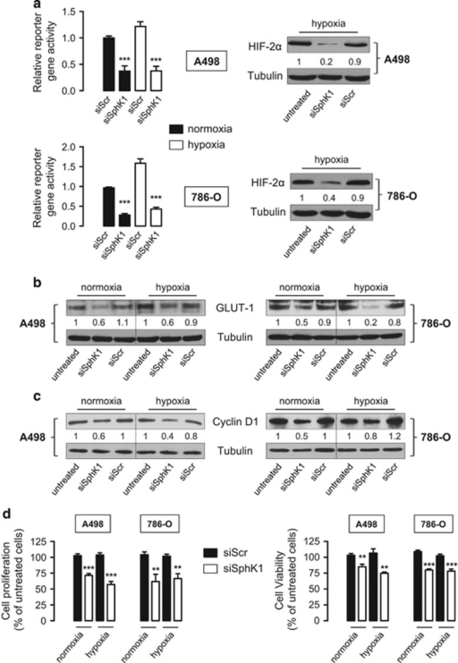 SphK1 silencing leads to a decrease in HIF-2 transcriptional activity in A498 and 786-O VHL-defective ccRCC cells. A498 and 786-O cells were treated with 20 nmol/l of siSphK1 or siScr for 72 h then incubated for an additional 16 h under normoxia or hypoxia. (a) HRE reporter gene assay (left) and protein HIF-2α expression (right) in transiently transfected A498 (upper) and 786-O (lower) cells. The y axis shows normalized Firefly luciferase over Renilla luciferase activity relative to the wild-type normoxic response. HIF-2α expression was analyzed by immunoblotting. Similar results were obtained in at least three independent experiments, and equal loading was monitored using antibody to tubulin. Columns, mean of at least four independent experiments; bars, s.e.m. ***P<0.001. Cell lysates were assayed for GLUT-1 (b) and cyclin D1 (c) expression by western blot analysis. Similar results were obtained in three independent experiments, and equal loading was monitored using antibody to tubulin. (d) Cell proliferation and viability was respectively assessed using [3H]-thymidine incorporation assay and MTT assay. Columns, mean of at least four independent experiments; bars, s.e.m. **P<0.01; ***P<0.001.