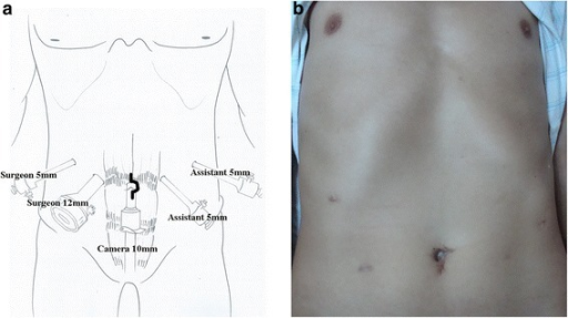 Trocar placement and incision. a Location of trocar placement and incision. b Postoperative view of the abdominal wound