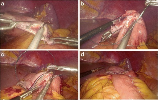 Intracorporeal hand-sewn end-to-side gastrojejunostomy. a Transection of the gastric stump with ultrasonic coagulating shears. b Suture of the posterior wall using interrupted sutures. c Suture of the anterior wall using a continuous suture. d Completed gastrojejunostomy
