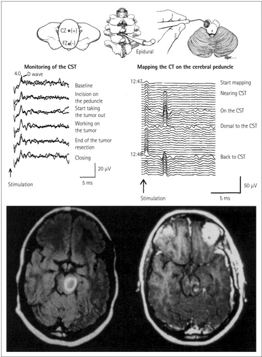 Mapping and monitoring of the corticospinal tract (CST) | Open-i