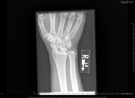 Anteroposterior radiograph of the wrist shows an approximately 5mm of widening between the scaphoid and lunate.  No apparent scaphoid fracture.  No evidence of early osteoarthritis.