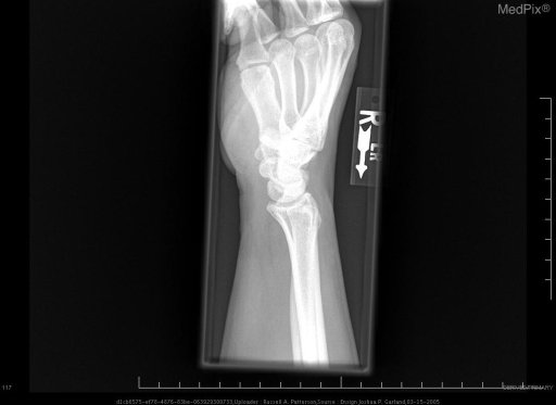Lateral radiograph of the wrist does not show volar or dorsal intercalated segmental instability.