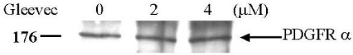 Western blot analyses of PDGFR-α in the whole A549 cell lysates. The whole cell lysates were separated on 7.5% SDS-PAGE and analyzed by Western blot using anti-PDGFR-α antibody. Treatment of A549 cells with Gleevec showed no effect on the PDGFR-α protein expression.