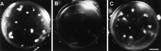 Influence of ovarian hormones on induction of cataract by TGFβ. Ovariectomized rats received vehicle alone (A), estrogen replacement (B),  or progesterone replacement (C). Lenses were cultured with 0.15 ng/ml TGFβ2 and photographed after 7 d. Lenses from rats that received vehicle alone  or progesterone developed distinct opacities (A and C), whereas lenses from rats that received estrogen remained transparent (B). Bar, 400 μm.