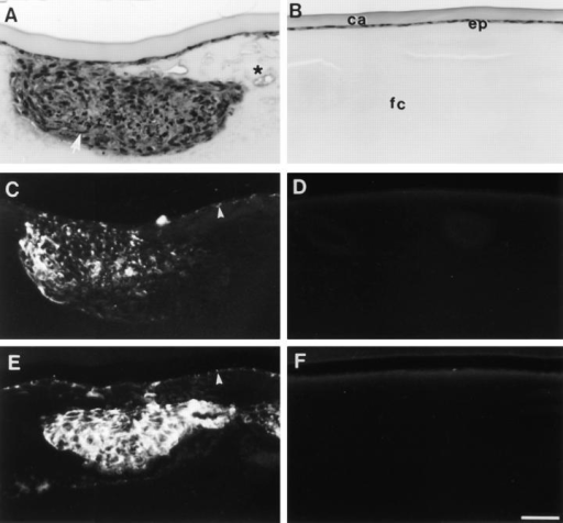 Histology and immunolocalization of cataract  markers. Lenses from ovariectomized rats that received vehicle  alone (A, C, and E) or estrogen  replacement (B, D, and F) were  cultured with 0.15 ng/ml  TGFβ2 and fixed at the end of a  7 d culture period. Serial sections  were stained with haematoxylin  and eosin (A and B), or used for  localization of α-smooth muscle  actin (C and D) and type I collagen (E and F). Lenses from rats  that received vehicle alone developed large anterior subcapsular plaques (A), which contained  spindle-shaped cells (arrow) and  many condensed nuclei. In addition, the fiber cells around the  plaques appeared swollen and  vacuoles were commonly present  (asterisk). α-Smooth muscle actin (C) and type I collagen (E)  were localized within the TGFβinduced subcapsular plaques and  also in some of the cells that remained attached to the capsule  (arrowheads). Lenses from rats that  received estrogen retained normal lens morphology (B) with a  monolayer of epithelial cells (ep)  adjacent to the lens capsule (ca)  and overlying the fibre cells (fc).  These lenses showed no reactivity  for either α-smooth muscle actin  (D) or type I collagen (F). Bar,  40 μm.