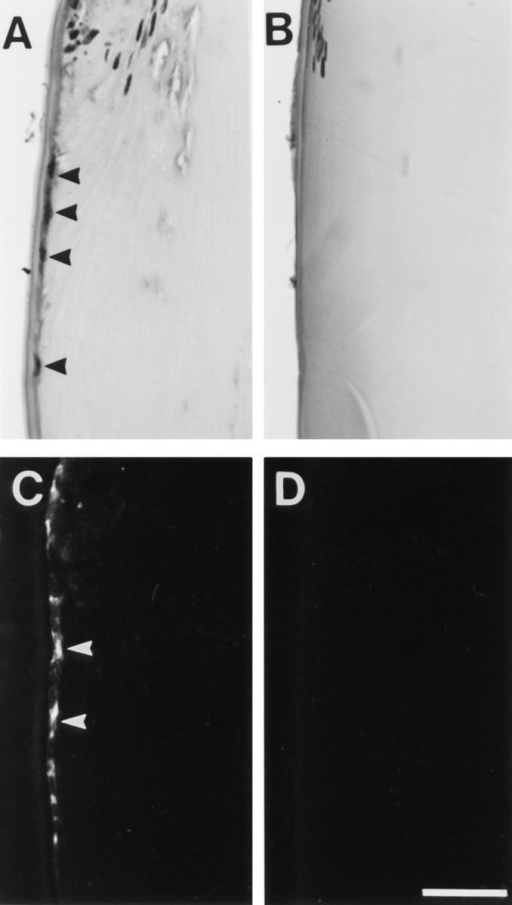 Posterior migration of cells associated with induction of cataract by TGFβ. Lenses from ovariectomized rats that received vehicle  alone (A and C) or estrogen replacement (B and D) were cultured with  0.15 ng/ml TGFβ2 and fixed at the end of the 7 d culture period. Serial  sections were stained for routine histology with haematoxylin and eosin  (A and B) or used for immunofluorescent localization of type I collagen  (C and D). The lens equator is positioned at the top of each micrograph.  In lenses from rats that received vehicle alone (A), nucleated cells were  observed migrating along the lens capsule toward the posterior pole (A,  arrowheads). Strong reactivity for type I collagen was associated with these  posteriorly migrating cells (C, arrowheads). In contrast, lenses from rats that  received estrogen replacement maintained a normal lens morphology  with no abnormal migration of cells below the lens equator (B). No reactivity for type I collagen was observed (D). Bar, 40 μm.