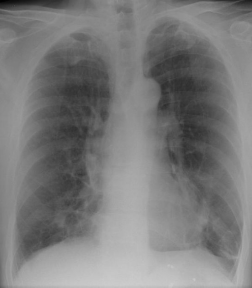 Ill-defined, mass-like density in the right middle lobe of the lung.