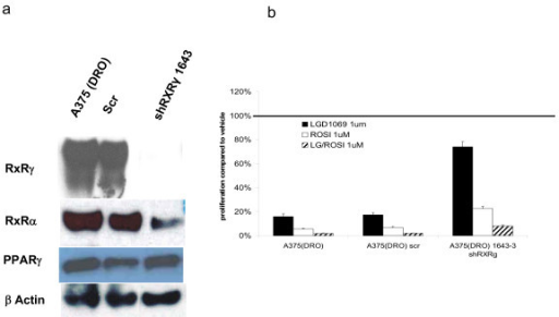 Western blot of nuclear hormone receptors and proliferation in A375(DRO) cells with shRXRg infection. A. – 60 μg of nuclear protein extract from A375(DRO), the SCR shRNA infected control cell and a clone of shRXRγ infected cells were size-separated on a 10% SDS-PAGE gel and transferred to nitrocellulose. The blot was blocked with 10% nonfat milk and incubated with RXRγ, RXRα and PPARγ primary antibodies and then secondary antibody with anti-rabbit IgG conjugated to horse-radish peroxidase as previously described. β-actin was measured as a loading control. B. – A375(DRO), the SCR infected and the shRXRγ infected sublines were grown in 2% fetal bovine serum RPMI in the presence of 1 umol/L of LGD1069, TZD or the combination for 9 days. Cell growth was analyzed using a nonradioactive cell proliferation assay. Proliferation was compared to that of cells grown in volume equivalent vehicle (DMSO – represented by the line). Proliferation of the SCR infected A375(DRO) was compared to the native cell line to confirm a similar response and then the shRXRγ infected cell line was compared to the SCR condition for an assessment of attenuation of decreased proliferation. Proliferation was statistically significantly attenuated compared to the A375(DRO) SCR subline in all treatment conditions (p < 0.05). Columns, mean; bars, SEM.