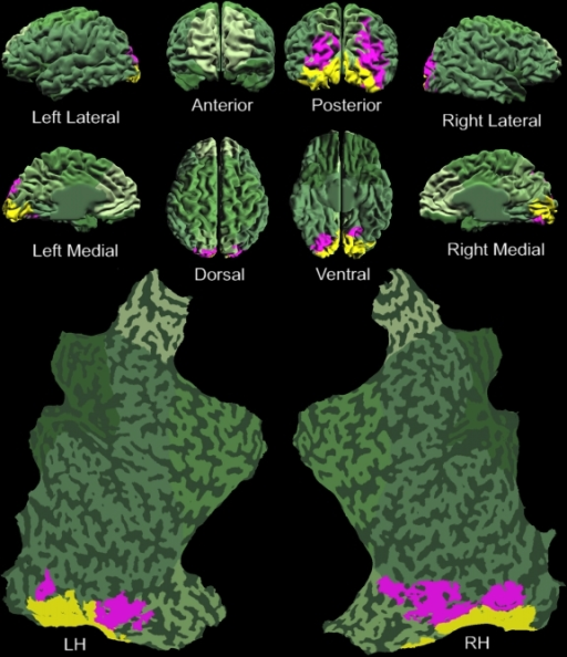 Layout of retinotopic areas that potentially maintain awareness of simple							targets. An individual brain model from all perspectives, including both							hemispheres flat-mapped, overlaid with the functional activation from							one typical subject. The yellow shaded areas are those portions of the							brain that did not show significant dichoptic masking (as in Figure 11B & 11C), and thus are ruled out for							maintaining visual awareness of simple targets. The pink colored voxels							represent the cortical areas that exhibited significant dichoptic							masking, and thus are potential candidates for maintaining awareness of							simple targets. Reprinted from Tse, et al. (2005).