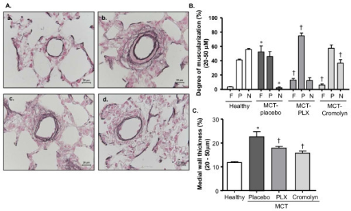 Effects of inhibiting c-kit and MC degranulation on pulmonary vascular remodeling of MCT-rats. Rats were treated with selective c-kit inhibitor (PLX), MC stabilizer (Cromolyn) or placebo from day 1 to 21 after MCT-injection. The rats in healthy group received saline injection instead of MCT. Double immunostaining for von Willebrand factor and α-smooth muscle actin, and elastica staining were performed on the lung tissues followed by vascular morphometry. (A) Representative photomicrographs of elastica-stained lung tissues (healthy- a, placebo- b, PLX- c and Cromolyn- d) are shown. (B) Proportion of non- (N), partially (P) or fully (F) muscularized pulmonary arteries and their (C) medial wall thicknesses (%) are given. Each bar represents Mean ± SEM (n = 8-10). *p < 0.05 versus healthy; †p < 0.05 versus MCT-placebo. Scale bar = 20 μm.
