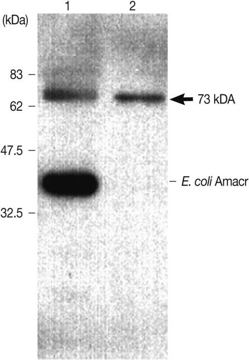 Immunoblot analysis of the recombinant Amacr protein with rabbit polyclonal Amacr antibodies. Lane 1, IPTG-induced BL21(DE3); Lane 2, purified recombinant protein Amacr-GST fusion protein marked by an arrow (73 kDa). The recombinant Amacr protein showed a single reactive band against the Amacr antibody, rabbit polyclonal to AMCR (Abcam).