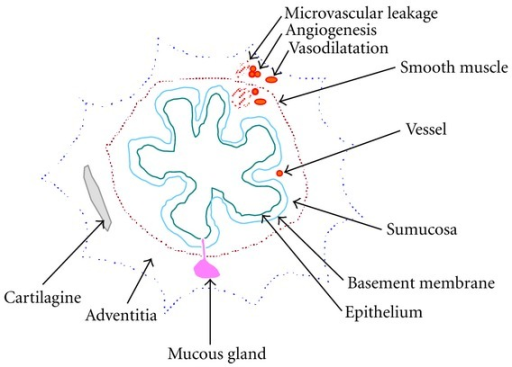 Schematic representation of bronchial airways wall. In asthma and COPD changes in bronchial microvasculature, such as angiogenesis, vasodilatation, and microvascular leakage, are present in response to inflammatory stimuli. Considering conventional therapy, only corticosteroids can positively act on all aspects of vascular remodelling.