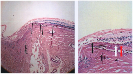 Photomicrograph of a glaucomatous optic nerve head (staining: PAS).Left: arrow #1 end of Bruch's membrane; arrow #2: beginning of choriocapillaris not occluded beneath Bruch's membrane; arrow #3: beginning retinal photoreceptors on Bruch's membrane; arrow #4: beginning of retinal pigment epithelium cells on Bruch's membrane. Right: higher magnification of beta zone; Black arrow: End of Bruch's membrane at the optic disc border; White arrow: open choriocapillaris; Red arrow: end of photoreceptor layer, choriocapillaris open.