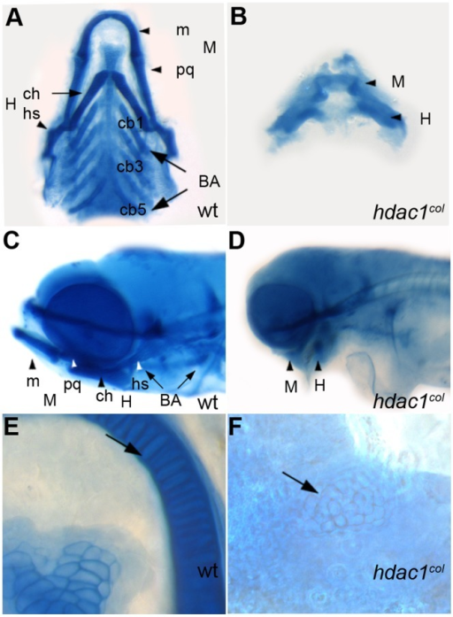 Craniofacial defects in hdac1b382 mutants.A–E alcian blue stained jaw elements in 5 dpf wild type A, C, E and hdac1b382 mutants B, D, F; A, B Ventral view of dissected craniofacial cartilages of wild-type and hdac1b382 mutant; C, D lateral view of head region in wild-type and hdac1b382 mutant; E,F, High magnification of the mandibular chondrocytes (arrows) in wild-type and hdac1b382 mutant; m, meckels; pq, platoquadrate; M, mandibular; ch, ceratohyal; hs, hyosymplectic; H, hyoid; cb1-5, ceratobrachials 1-5; BA, branchial arches.
