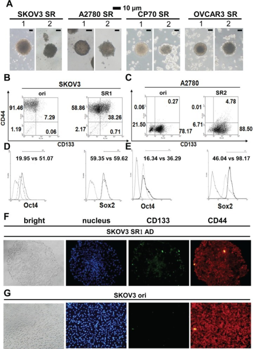 Morphology and stemness properties of ovarian cancer cell spheroids(A) Two different types of spheroids (SR1 and SR2) were enriched in various ovarian cancer cell lines. (B, C) The CD44+CD133+ signal increased in both SR1 and SR2 cells derived from SKOV3 and A2780 cells, whereas CD44+CD133− and CD44−CD133+ were expressed in the original SKOV3 and A2780 cells, respectively. The expression of CD133 and OCT4 was higher in SKOV3SR1 cells (B, D), whereas the expression of OCT4 and SOX2 was higher in A2780SR2 cells (C, E). (F, G) Expression of CD133 and CD44 was compared between adhesive SKOV3-derived SR1 and the original cells. (F) After adhesive culture for 24 hours, the expression of CD133 decreased in adhesive SKOV3-derived SR1 from the center site to the periphery, but CD133 in scattered SR1 cells was still detectable in the periphery. (G) Almost all SKOV3 original cells expressed CD44 but not CD133.