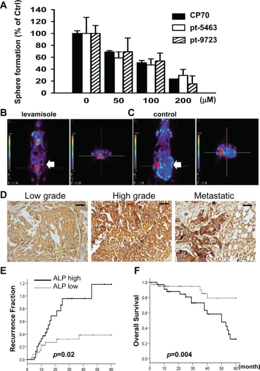 Inhibition of ALP activity by levamisole interferes with the formation of spheroids and tumors in ovarian CSLCs(A) Levamisole inhibited spheroid formation of dissociated single CP70SR1 cells and specimen-derived SR1 cells. The inhibitory efficacy of levamisole differed between spheroids isolated from different patients. For in vivo analysis of the effect of levamisole on ovarian CSLCs, mice were implanted peritoneally with CP70 cells and then given oral levamisole (B) or placebo (C). Tumor volume was significantly decreased in levamisole-treated mice as analyzed using a micro-PET image system. (D) ALP expression was associated with serous type and a high grade of EOC. In addition, metastatic cancer with the greatest expression of ALP indicated that ALP was related with advanced stage of EOC. Kaplan–Meier analysis of the probability of recurrence (E) and overall survival rate (F) in ovarian cancer patients stratified according to ALP expression (n = 73).
