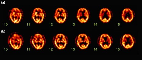 Brain technetium‐99m ethyl cysteinate dimer single photon emission computed tomography (SPECT). (a) The first SPECT showing a high radioisotope uptake in the lower part of the right thalamus (number 11 and 12). (b) The high uptake is still observed in the right thalamus (number 12 and 13) in the second SPECT. Redistribution of thalamic blood flow with upward migration is considered.