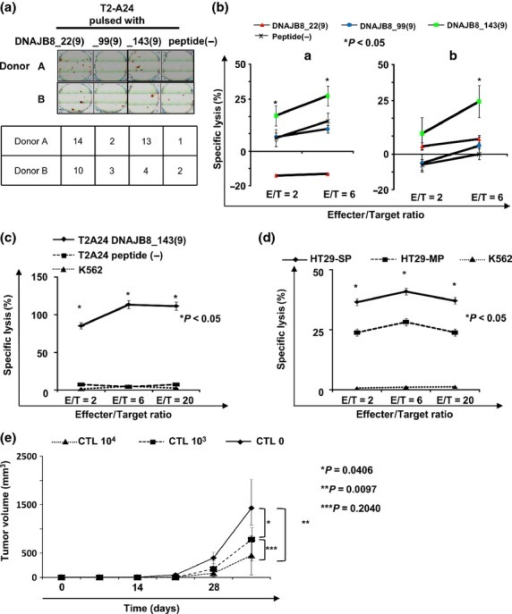Antitumor effect of DNAJB8-specific cytotoxic T lymphocyte (CTL) clone. (a) Interferon-γ enzyme-linked immunospot assay. (b) 51Cr release assay. We evaluated specific cytotoxic activity against peptide-pulsed T2-A24 cells in healthy donors. (c, d) 51Cr release assay using the DNAJB8_143(9)-specific CTL clone. We established CTL clones recognizing DNAJB8_143(9) and evaluated cytotoxic activity against side population (SP) cells and main population (MP) cells derived from HT29 cells. (e) Tumor growth of HT29 cells in a therapeutic adoptive transfer model. HT29 cells were inoculated subcutaneously into the back of five NOD/SCID mice and CTL clone cells or PBS was injected intravenously 3 weeks later. Tumor growth was measured weekly. Data represent means ± SD. Differences between groups were examined for statistical significance using the Student's t-test.