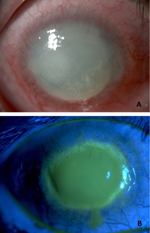 A) Corneal melting and vascularization in a patient wi | Open-i