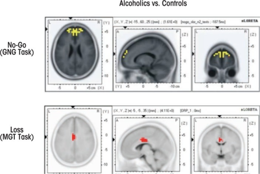Application of standardized low-resolution brain electromagnetic tomography (sLORETA) to alcoholism. Top panels: Current density in alcoholics and control subjects were compared in a Go/No-Go task using sLORETA. Alcoholics showed significantly lower current density activations in bilateral anterior prefrontal regions during No-Go–related N2 activity (yellow blobs in top panels), indicating dysfunctional inhibitory control in alcoholics (Pandey et al. 2012b). Bottom panels: A sLORETA study in an MGT task found that alcoholics showed decreased current density activation at the middle cingulate cortex region during loss-related P3 activity (red blobs in bottom panels), indicating deficient activation in the reward-related structures or networks (Kamarajan et al. 2010).