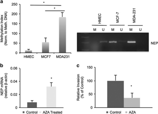 NEP promoter hypermethylation in breast cancer cells regulates expression and invasion. (a) Quantitative BSC–PCR from HMEC, MCF-7 and MDA-MB-231 cells shows significantly increased methylation in MDA-MB-231 lines compared with MCF-7 cells (P=0.038) or normal HMEC breast cells (P=0.033) over three independent experiments. Representative Ct graphs and primer melt curves are shown in Supplementary Figure 5. Right, representative gel from end point BSC–PCR; U=product amplified with unmethylated specific NEP primers; M=product amplified with methylated specific NEP primers. Gels are cropped to the appropriate molecular weight. (b) RT–PCR of cDNA from MDA-MB-231 cells treated with AZA shows increased levels of NEP mRNA after AZA treatment (P=0.012 over three independent experiments). (c) In vitro invasion assays with MDA-MB-231 cells treated with AZA or vehicle control show decreased invasion with AZA treatment (P=0.0045 over three independent experiments).