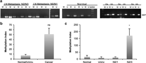 NEP hypermethylation and decreased expression in IDC samples. (a) DNA isolated from human IDC tumor samples was subjected to BSC and PCR amplification using methylated specific ('M') and unmethylated specific ('U') primers from the NEP promoter. Samples are grouped by lymph node metastasis status; the third N0/N1 sample was run on the same gel as the other samples, but was rearranged for organizational purposes. The normal samples were run on a separate gel but processed and analyzed with the cancer samples. The samples on the right show BSC analysis of matched Cancer ('Ca') and Uninvolved ('Un') tissue. Gels are cropped to the appropriate molecular weight. (b) Methylation index analysis from quantitative BSC–PCR reveals a non-significant trend of increased methylation in cancer samples compared with normal/uninvolved tissue (n=6 for each; P=0.09). (c) Methylation index from quantitative BSC–PCR analysis reveals that metastatic tumor samples (scored as N2/N3 by lymph node analysis; n=3) have significantly higher NEP promoter methylation than normal breast tissue (n=3; P=0.04), uninvolved breast tissue (n=3; P=0.039), and cancer tissue with little or no metastasis (scored as N0/N1; n=3, P=0.039).