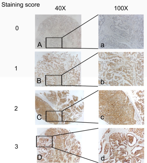 The expression of eIF4G1 at the protein level in ovarian cancer tissues from patients.(Left, ×40; Right, ×100) Immunohistochemical staining of eIF4G1 in ovarian cancer tissue at different staining score using anti-human eIF4G1 antibodies. (Left magnification, ×40; Right magnification, ×100).