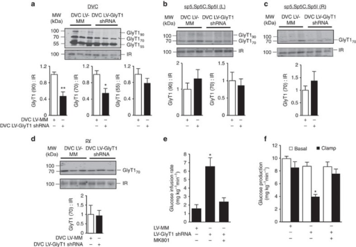 Molecular inhibition of DVC GlyT1 regulates glucose homeostasis in healthy rats.(a) Representative western blots and protein levels of plasma membrane GlyT1 (55, 70 and 90 kDa isoforms) normalized to insulin receptor (IR) in DVC wedges of rats 13-day post DVC lentiviral (LV) injection of GlyT1 shRNA (black bars, n=14) or a mismatch sequence (MM; white bars, n=11) as a control. *P<0.01, **P<0.001 determined by t-test. (b–d) Representative western blots and protein levels of plasma membrane GlyT1 (70 and/or 90 kDa isoforms) normalized to IR in sp5, Sp5C, Sp5I (L), sp5, Sp5C, Sp5I (R) and py wedges of rats 13-day post DVC LV injection of GlyT1 shRNA (black bars, n=5) or MM (white bars, n=5). (e) Glucose infusion rates and (f) glucose production during clamps in rats injected with LV-MM (n=7), LV-GlyT1 shRNA (n=7)or LV-GlyT1 shRNA with DVC MK801 infusion (n=6). (e: *P<0.006; f: *P<0.003 versus LV-MM control and LV-GlyT1 shRNA+MK801 determined by ANOVA and Dunnett's post hoc test). Data are shown as the mean+s.e.m.