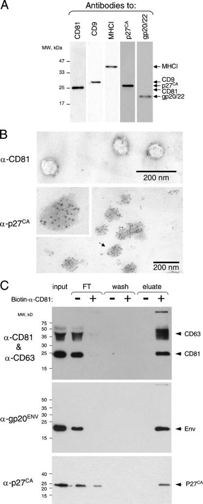 Fusogenic exosomes are associated with MPMV. (A) MPMV Env, Gag, and exosomal CD9, CD81, and MHCI were detected by immunoblotting in P70 (see Materials and methods). (B) CD81 is detected on the surface and p27Ca Gag of MPMV inside of exosomes by immuno-EM (see Materials and methods). The inset is an enlargement of the particle indicated by the arrow. (C) MPMV Env and p27 capsid are associated with exosomal markers CD81 and -63. P70 preparation was incubated with or without biotinylated anti-human CD81 antibody and fractionated in a capture assay using magnetic streptavidin microbeads (see Materials and methods). The unbound fraction (FT), the final wash, and the bound fraction (eluate) were analyzed by immunoblotting. Antibodies to CD63 and -81 were used together for convenience because both identify distinct polypeptides. The experiments in A and B were done multiple times and the experiment in C twice.