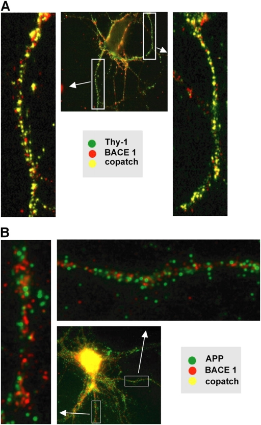 BACE 1 copatches with the DRM marker Thy-1 but is largely segregated from APP in the neuronal plasma membrane. Hippocampal neurons were cultured for 10 d and pairs of membrane proteins were studied by the copatching technique (see Materials and methods). (A) BACE 1 and the DRM marker Thy-1 copatch extensively, indicating that both molecules are located in membrane DRM domains (note yellow dots in the enlarged images). (B) APP and BACE 1, in contrast, appear extensively segregated.