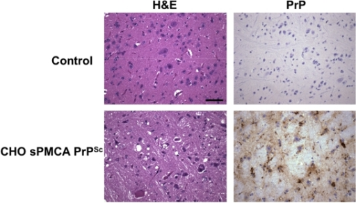 Neuropathology of hamsters infected with prions derived from CHO-expressed PrP substrate.Representative histological fields of the brainstem region in control animals and animals inoculated with CHO-expressed in vitro-generated PrPSc molecules. Top row: normal 166 day old Syrian golden hamster, mock inoculated with day 15 sPMCA propagation reaction containing the cobalt-purified fraction from untransfected CHO cells. Bottom row: terminally ill hamster inoculated with Sc237-seeded day 15 sPMCA reaction containing cobalt-prepared PrPC expressed from CHO cells. Both reactions were seeded on day 0 with 0.01% Sc237-infected hamster brain homogenate. Hemotoxylin and eosin (H&E) and PrP immunohistochemical (3F4 antibody) staining are shown for each group. (Scale bar, 50 µm.)