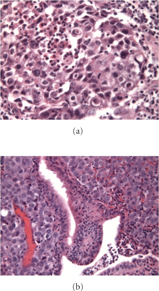 Microscopic images of the primary lung cancer and jejunal metastasis. H&E, 250X. (a), lung: a nest of large, polymorphous epithelial cells with strong mitotic activity and central necrosis is observed, consistent with large cell carcinoma (NSCLC). (b), jejunum: groups of large anaplastic cells invading the lamina propria.