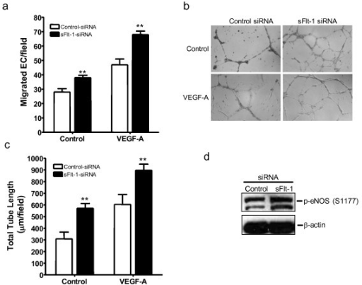 Loss of sFlt-1 enhances angiogenesis and eNOS phoshorylation. (a) VEGF (20 ng/ml) induced an increase in cell migration of HUVEC transfected with sFlt-1 siRNA compared with control siRNA using a modified Boyden chamber assay. (b) VEGF-induced capillary-like tube formation and (c) quantification of mean total tube length per field of view after six hours treatment in HUVEC transfected with sFlt-1 siRNA or control. (d) Representative Western blot showing eNOS phosphorylation at serine 1177 (p-eNOS (S1177)) in HUVEC transfected with soluble (sFlt-1) or control siRNA. β-actin was used as a loading control. Data are expressed as mean (± SEM) or representative of three or more independent experiments performed in triplicate. **P < 0.01 vs. control.