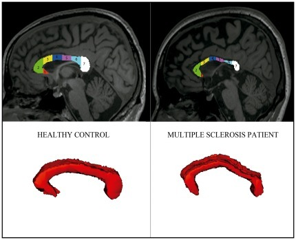 Structural magnetic resonance imaging of the corpus callosum.Area of corpus callosum in midsagittal slice with subdivision in 7 segments, corresponding consecutively to the rostrum, genu, rostral body, anterior midbody, posterior midbody, isthmus, and the splenium (top images) and volume obtained from 11 consecutive central sagittal slices (bottom images). Left images correspond to a healthy control and right images to a multiple sclerosis patient.