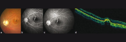 CP (a), FFA (b, c) and OCT (d) at 1-month follow-up. CP shows a yellowish streak at the macula concentric to the optic disc, suggestive of a lacquer crack. FFA and OCT confirm the presence of a smaller, yet active CNV