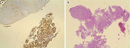 a Photomicrograph of liver biopsy showing the positive immunohistochemical reaction to carcinoembryonic antigen. b Photomicrograph of rectal biopsy with hematoxylin and eosin confirming the diagnosis of adenocarcinoma.