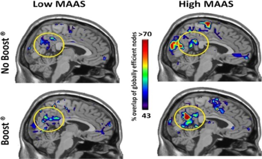 Global Efficiency Maps by MAAS Category: Precuneus. This figure shows a mid-saggital section of the brain for each group and condition. The regions that consistently exhibited high global efficiency across the study populations are color-coded according to % of the population. Note that the precuneus shows highest consistency in the High MAAS group following BOOST®. The Low MAAS group exhibited low consistency in this area regardless of condition.